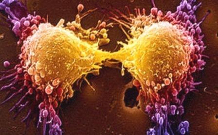 Использование продукции Тяньши при онкологии